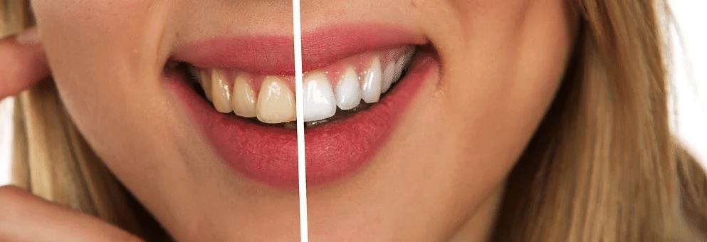Zubní pasta s fluorem či bez? 3