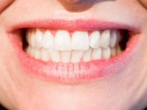 Čištění zubů v kostce 1. část – Jak často a čím si je čistit? 2